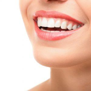 Dental Braces in Dubai