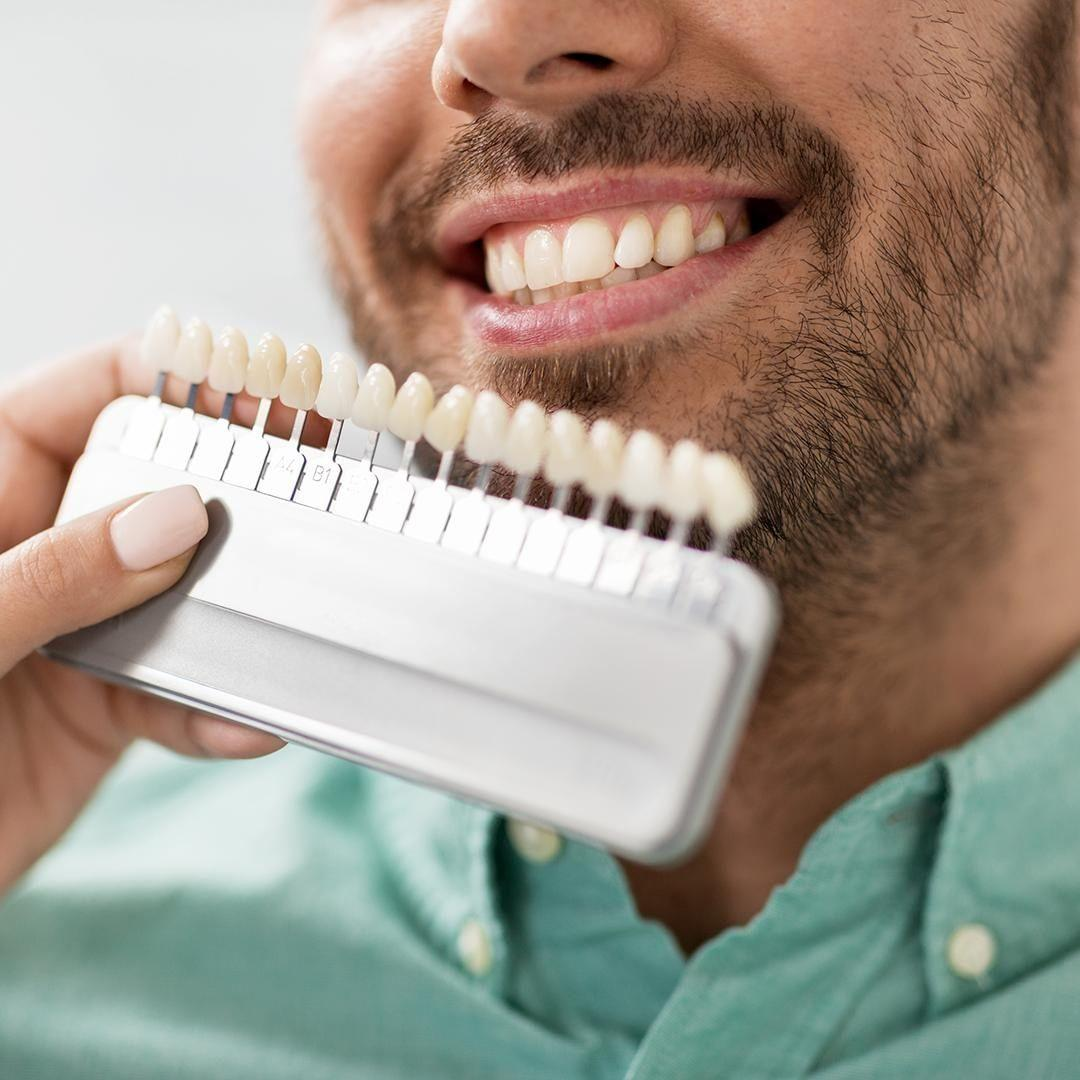 teeth whitening treatment in Dubai