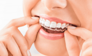 1,2,3, Smile: A Step-by-Step Guide Of The Invisalign Treatment