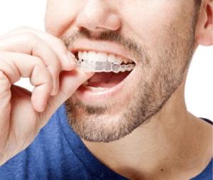 best orthodontist in dubai